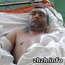 Бердичевские и житомирские травматологи провели уникальную операцию на руке. ФОТО