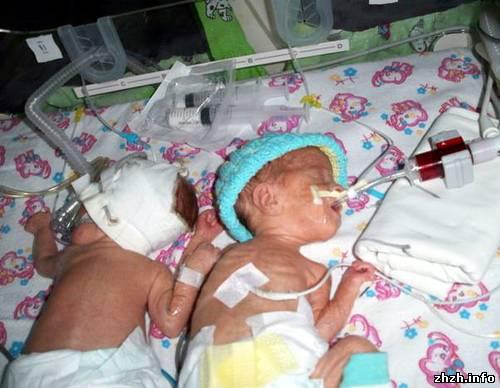 В Житомире третью неделю врачи борются за жизнь новорожденных